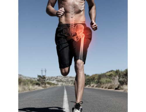 Running injuries – Part 2